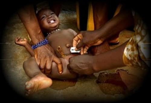 milhões de mulheres que foram mutiladas sexualmente estas mulheres